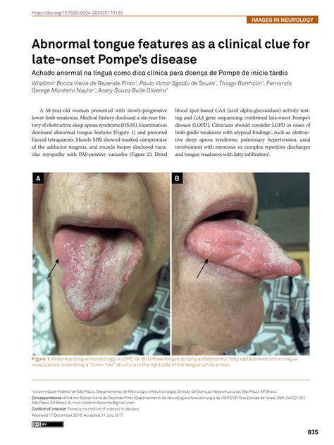 (PDF) Abnormal tongue features as a clinical clue for late